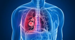 Thoracic or Lung Cancers The best Cancer Treatment Centre Delhi Gurgaon | Thoracic or Lung Cancer Treatment Services or Expertise: Inherited lung cancer risk , Lung cancer , Lung nodules , Mediastinal cancer , Mesothelioma , Metastatic tumors to the lungs , Non-small cell lung cancer , NUT Carcinoma , Pleural cancer , Pulmonary carcinoid , Respiratory system cancers , Small cell lung cancer , Thymoma/thymic malignancies , Tracheal cancer , Tumors of the chest wall , Other thoracic malignancies , Thymoma and Thymic Malignancies , Metastatic Disease to the Lungs , Mediastinal Mass , Benign and Malignant Pleural Conditions , Thoracic Cancer Surgery | Thoracic or Lung cancers Specialist : Dr. Vinay Samuel Gaikwad - GI & HPB Surgical Oncologist